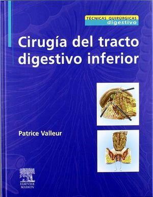 CIRUGIA DEL TRACTO DIGESTIVO INFERIOR