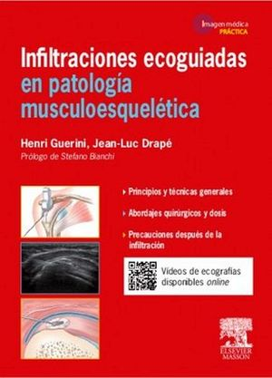 INFILTRACIONES ECOGUIADAS EN PATOLOGIA MUSCULOESQUELETICA