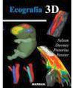 ECOGRAFIA 3D