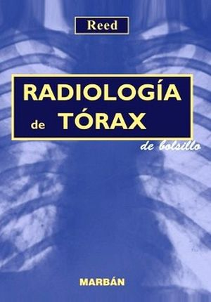 RADIOLOGIA DEL TORAX