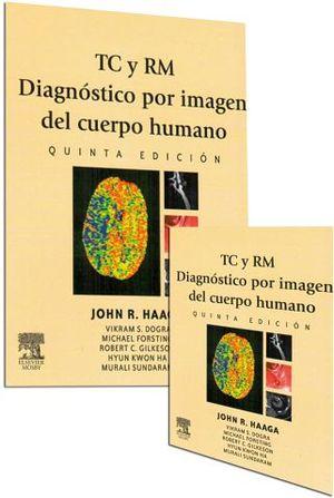 TC Y RM DIAGNOSTICO POR IMAGEN DEL CUERPO HUMANO 5ED. 2VOL.