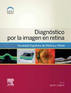 DIAGNOSTICO POR IMAGEN EN RETINA