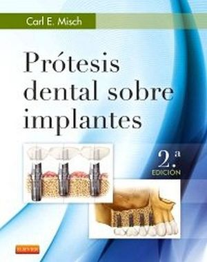 PROTESIS DENTAL SOBRE IMPLANTES 2ED.