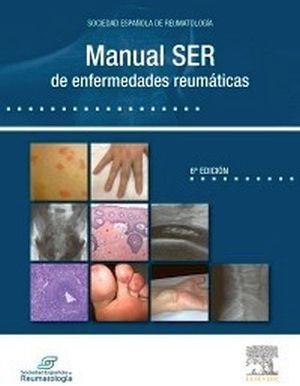MANUAL SER DE ENFERMEDADES REUMATICAS 6ED.