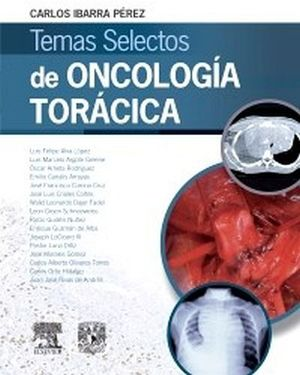 TEMAS SELECTOS DE ONCOLOGIA TORACICA