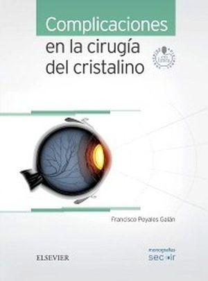 COMPLICACIONES EN LA CIRUGIA DEL CRISTALINO (C/ACCESO WEB)