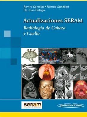 RADIOLOGIA DE CABEZA Y CUELLO  (ACTUALIZACIONES SERAM)