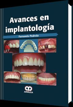 AVANCES EN IMPLANTOLOGIA
