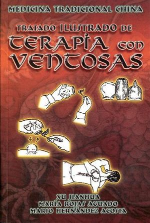 TERAPIA CON VENTOSAS (TRATADO ILUSTRADO)