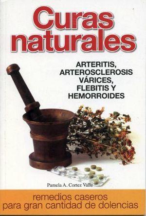 CURAS NATURALES (ARTERITIS/ARTEROSCLEROSIS/VARICES/FLEBITIS)
