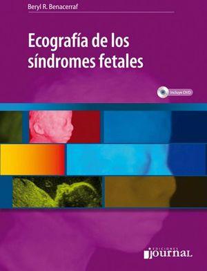 ECOGRAFIA DE LOS SINDROMES FETALES